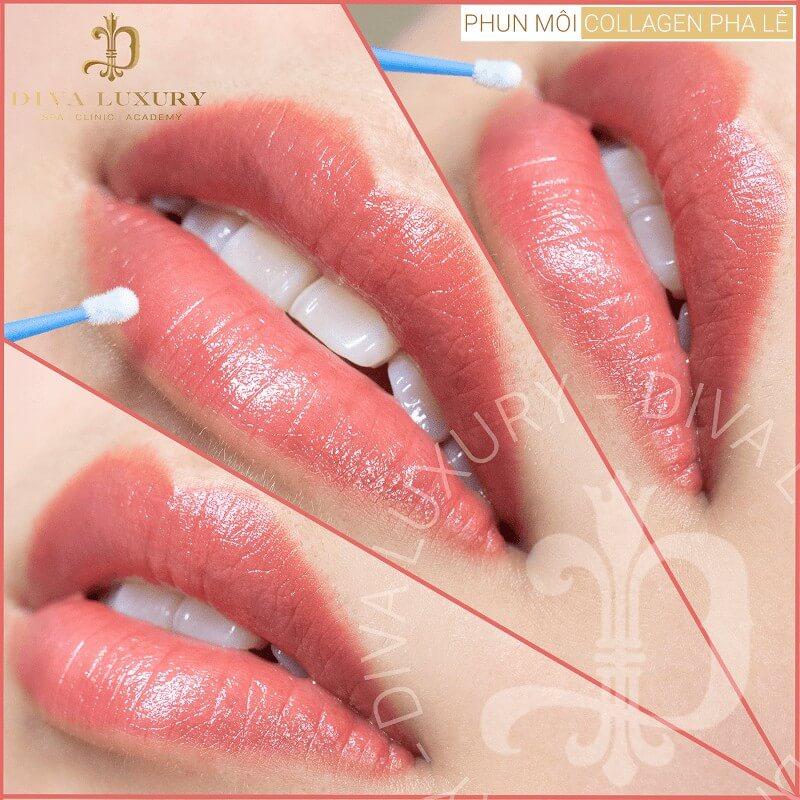 Môi xinh đúng chuẩn với công nghệ phun môi Collagen tại Viện thẩm mỹ DIVA