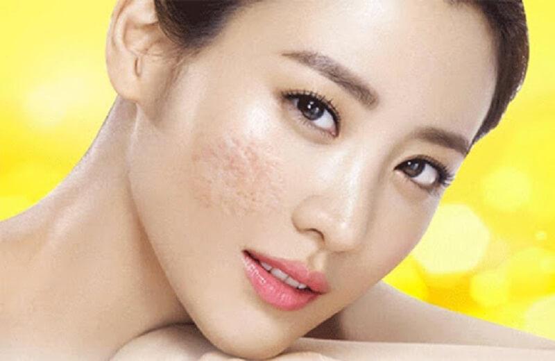 Những vết sẹo rỗ trên da gây mất thẩm mỹ và giảm sự tự tin trong giao tiếp